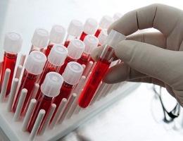 норма, показатели и результаты анализа крови у детей